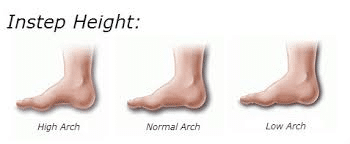 Moch10 Plantar Fasciitis Remedy. Arch types.